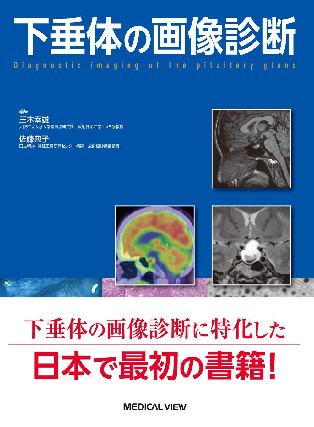 「下垂体の画像診断」という本が刊行の運びとなりました。当教室の医局員が、編集・執筆の多くを担当しました。